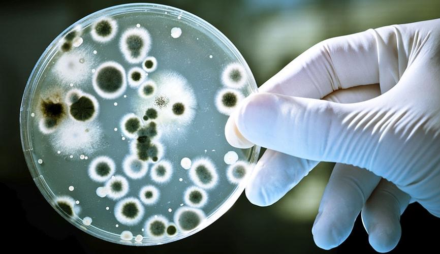 Бактериални замърсявания